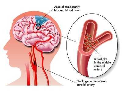 TIA (transient ischemic attack)