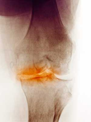 X-ray of a knee showing degenerative arthritis.