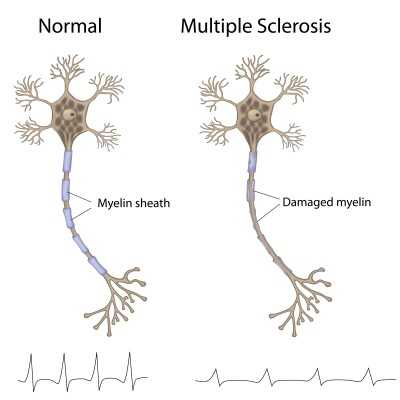 multiple-sclerosis-ms